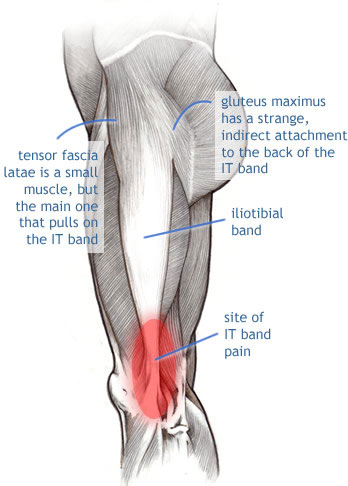 IT Band pain outside knee